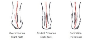 how-runners-can-benefit-from-gait-analysis-overpronation