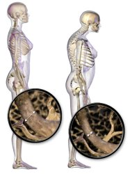 How Does Bone Health Impact Running Osteoporosis